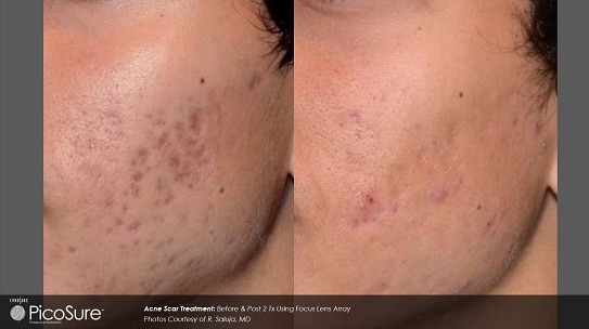 acne scar removal charleston sc