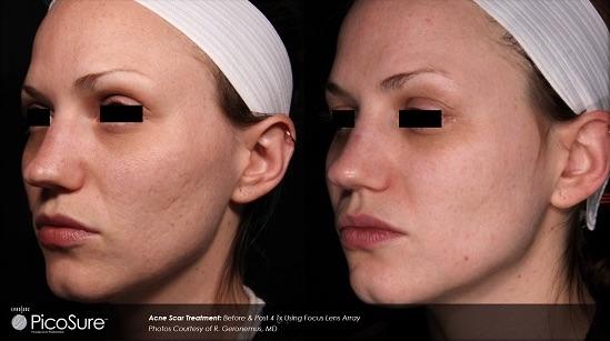 laser acne scar removal charleston sc