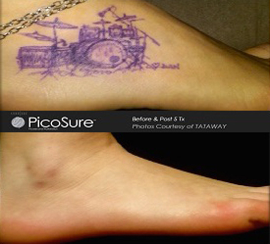 PicoSure CO2 Laser Charleston, SC