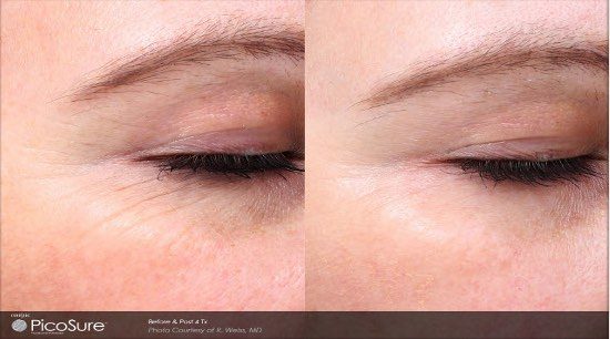 picosure laser wrinkle reduction charleston sc