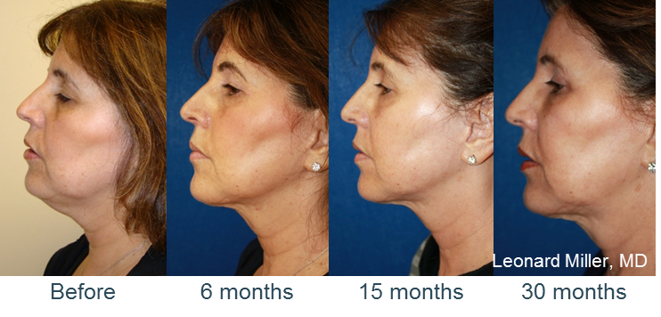 ThermiTight Skin Tightening Charleston, SC