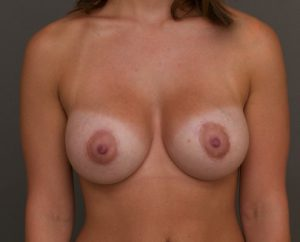 breast augmentation charleston sc images