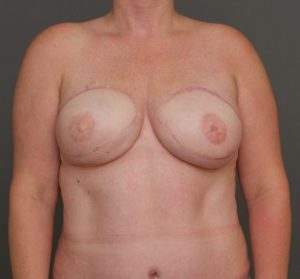 breast reconstruction charleston sc after