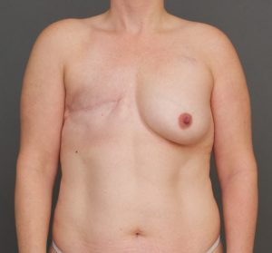 breast reconstruction charleston sc before