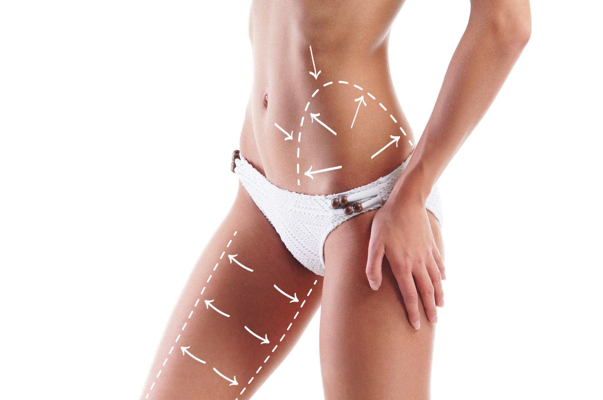 Body Plastic Surgery Charleston, SC
