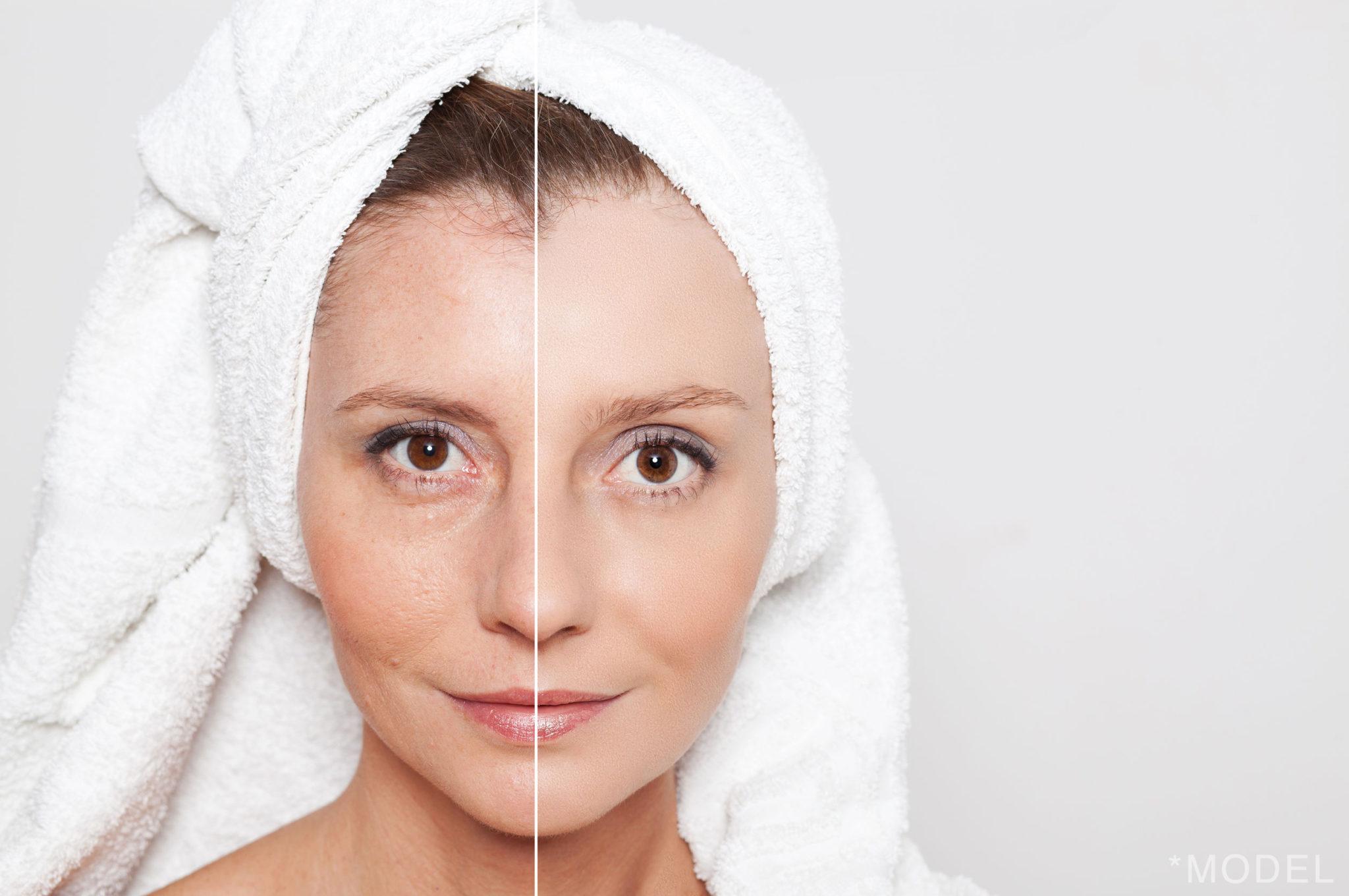 Skin Damage Restoration