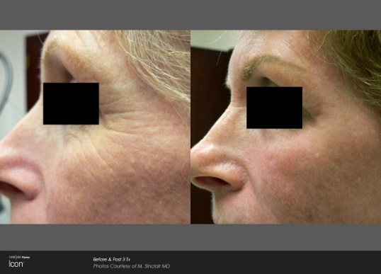 Skin Renewal Before and After