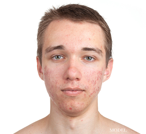 ONeill Plastic Surgery Acne
