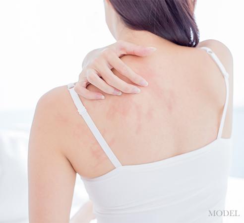 ONeill Plastic Surgery Rash Treatments