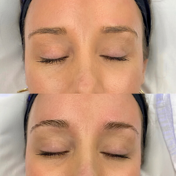 Brow Lamination Before and After Image